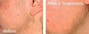 img1-skin-rejuv